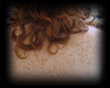 1 - 2 - freckles back