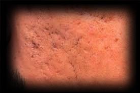 1 - 6 - acne scars 2