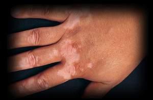 1 - 8 - vitiligo