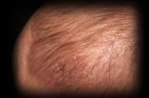 8 - 1 - neonatal cradle cap